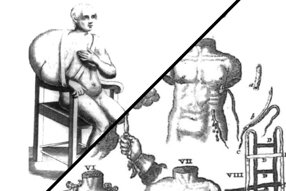 cancro, 600, illustrazioni, chirurgia,