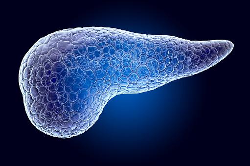 Tumore al pancreas, biomarcatore, cancro, tumore, pancreas, IL8,