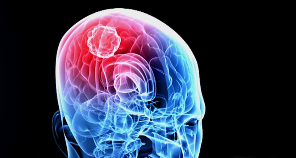 glioblastoma multiforme, tumore al cervello, cancro, fondazione bartolo longo