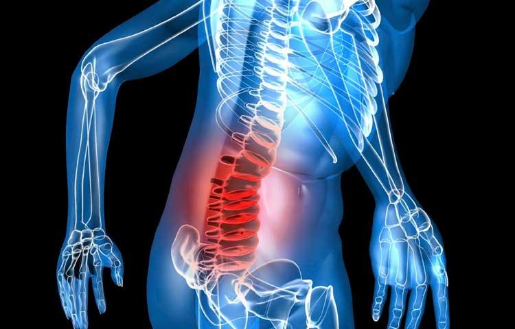 vertebrolpastica, metastasi vertebrali, tumore, vertebre, cancro, fondazione bartolo longo,