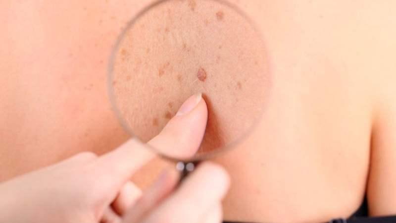 carcinoma cutaneo a cellule squamose, tumore della pelle, cancro, pelle, fondazione bartolo longo,
