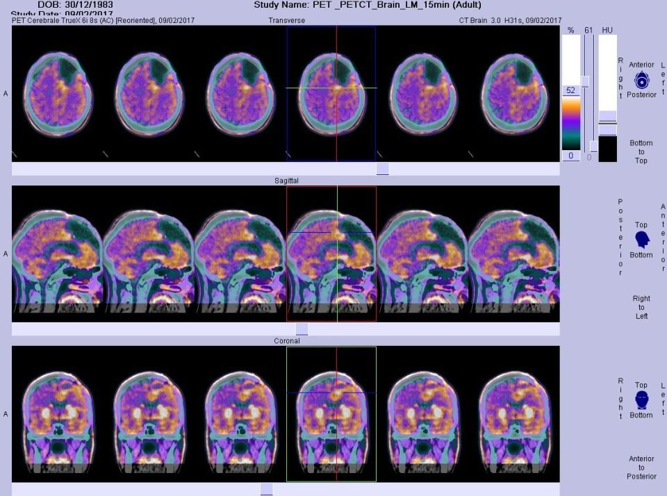 Glioblastoma, iperattività mitocondriale, tumore al cervello, tumori cerebrali, cancro, Fondazione Bartolo Longo,